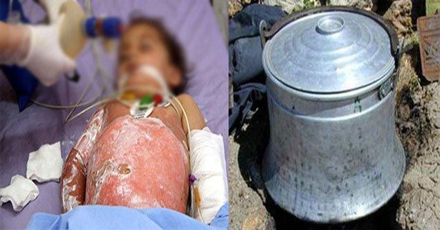 Üzerine kaynar süt dökülen çocuk ağır yaralandı!